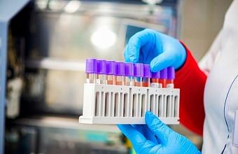 На Кубани еще у 90 человек обнаружили коронавирус