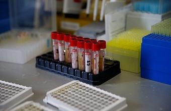 Коронавирус на Кубани диагностировали еще у 80 человек