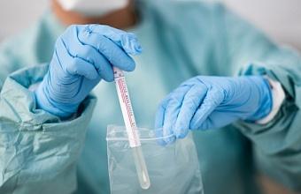 Общее число заболевших COVID-19 на Кубани достигло 9730 человек